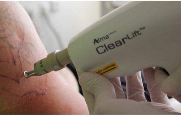 מאסטרו לייזר הסרת שיער , קעקועים וצלקות מכל אזורי הגוף