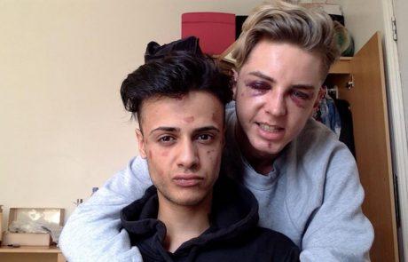 הומופוביה בברייטון אנגליה ,זוג גייז בריטי הותקף